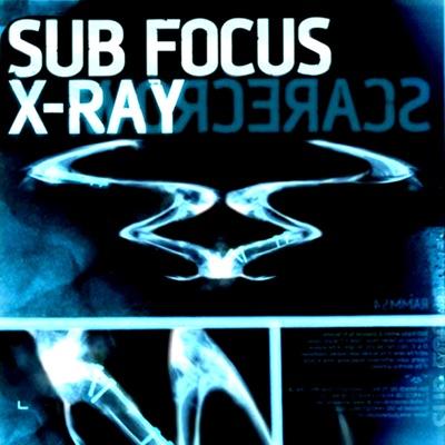 X-Ray - Single - Sub Focus