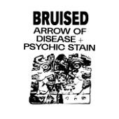 Bruised - Arrow of Disease