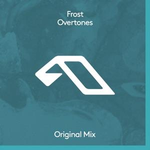 Overtones - Single