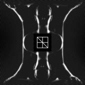 Åre:gone - Koi No Yokan (Crystal Geometry Remix)