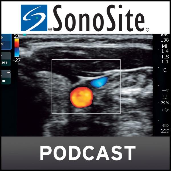 SonoSite Podcast