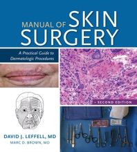 Manual Of Skin Surgery: A Practical Guide To Dermatologic Procedures, 2e
