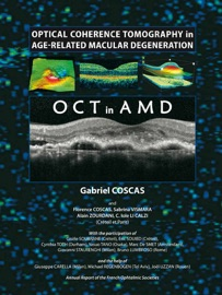 Optical Coherence Tomography In Age Related Macular Degeneration