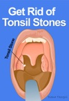 Get Rid Of Tonsil Stones Causes Symptoms Treatment Removal And Other Remedies