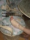 The Ankle Sprain Diaries