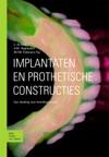 Implantaten En Prothetische Constructies
