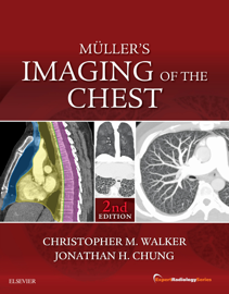 Muller's Imaging of the Chest E-Book