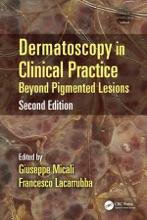 Dermatoscopy In Clinical Practice