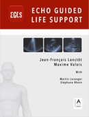 Echo Guided Life Support (EGLS)