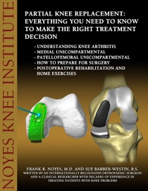 PARTIAL KNEE REPLACEMENT: EVERYTHING YOU NEED TO KNOW TO MAKE THE RIGHT TREATMENT DECISION