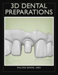 3D Dental Preparations