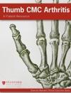 Thumb CMC Arthritis