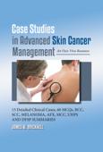 Case Studies in Advanced Skin Cancer Management