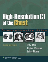 High-Resolution CT Of The Chest: Third Edition