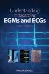 Understanding Intracardiac EGMs And ECGs