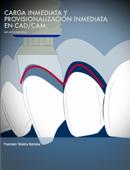 Carga inmediata y provisionalización inmediata en CAD/CAM