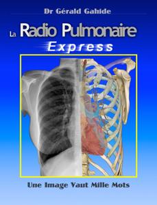 La Radiographie Pulmonaire Express La couverture du livre martien