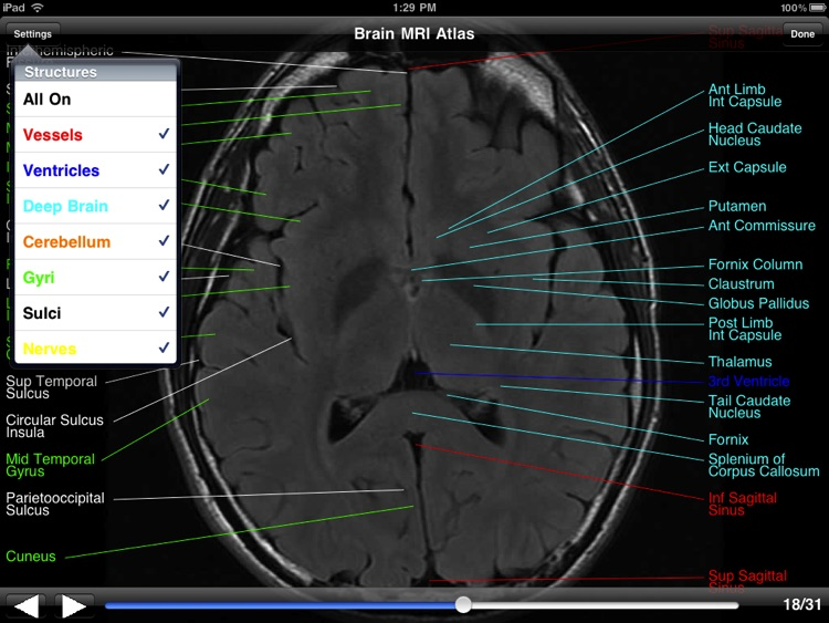 Brain MRI Atlas screenshot-2