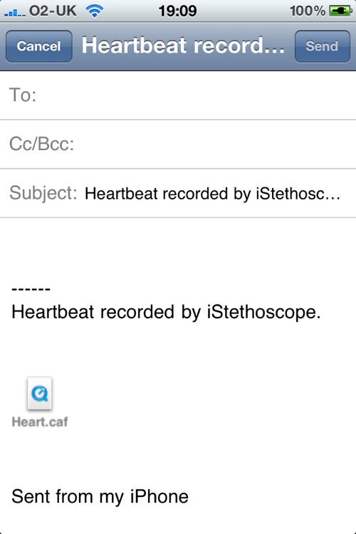 iStethoscope Free screenshot-4