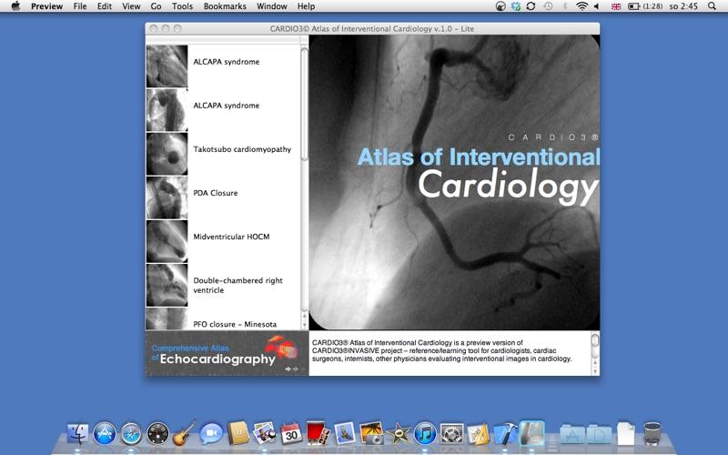 CARDIO3 Atlas of Interventional Cardiology - Lite Screenshot