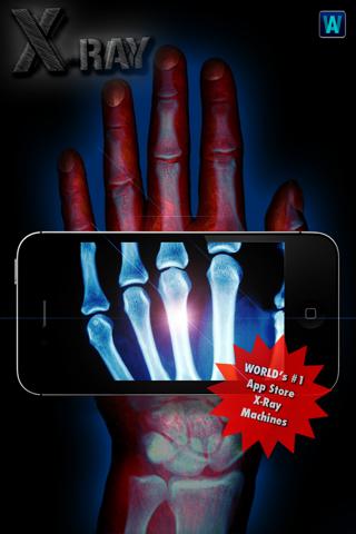 Amazing X-Ray FX ² PRO screenshot 2