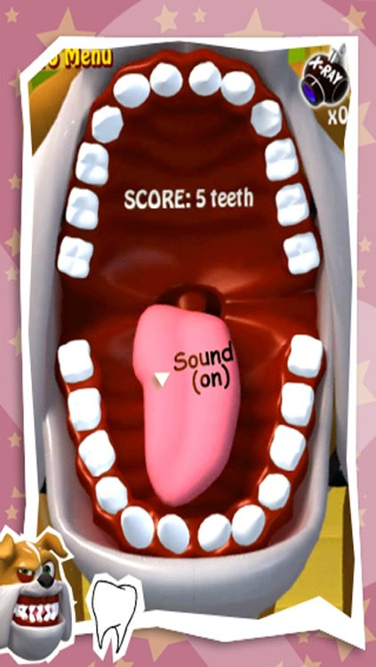 Spark Tooth Out screenshot-3