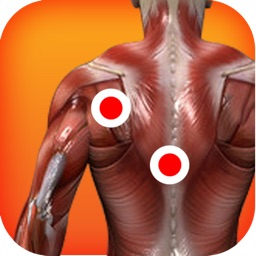 Trigger Points of Muscle