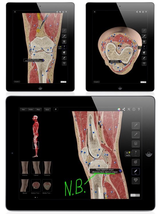 Knee Pro III for iPad screenshot-2