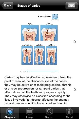 Miniatlas Dentistry screenshot-3