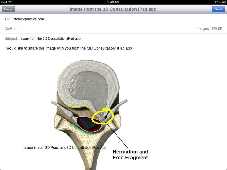 3D Consultation screenshot-4