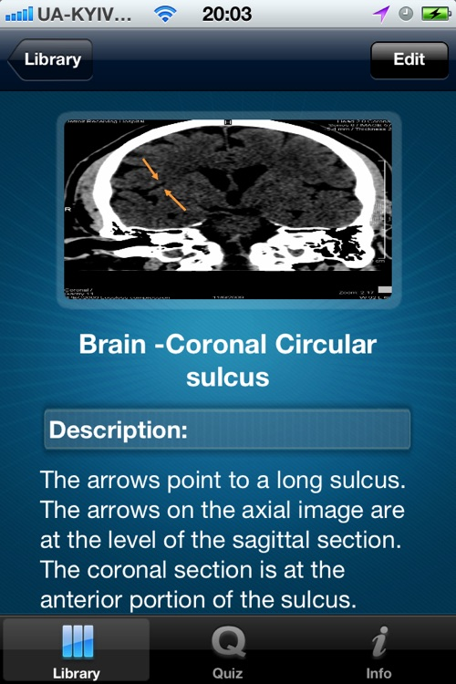 CT Scan screenshot-2