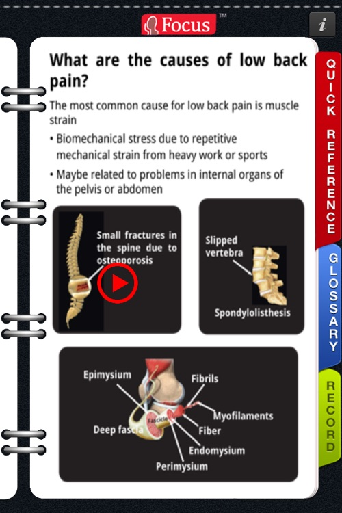 Animated Quick Reference Guide - Backpain