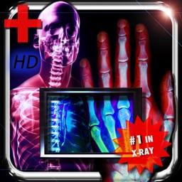 Amazing X-Ray FX ² FREE+