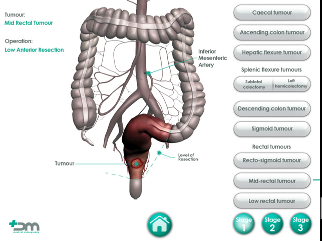 Colorectal on the App Store