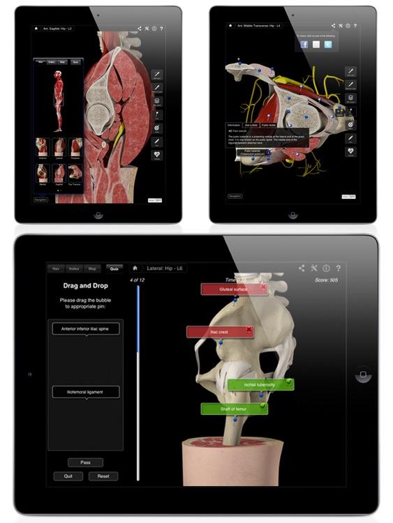 Hip Pro III for iPad screenshot-4