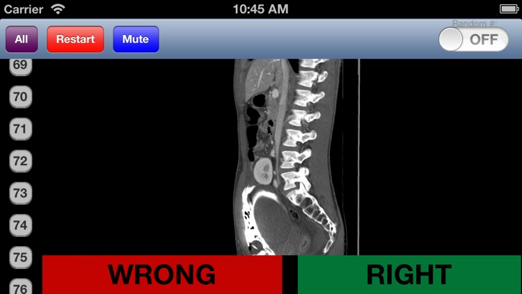Emergency Radiology screenshot-1