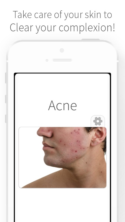Acne - Causes of Pimples and Natural Organic Remedies to