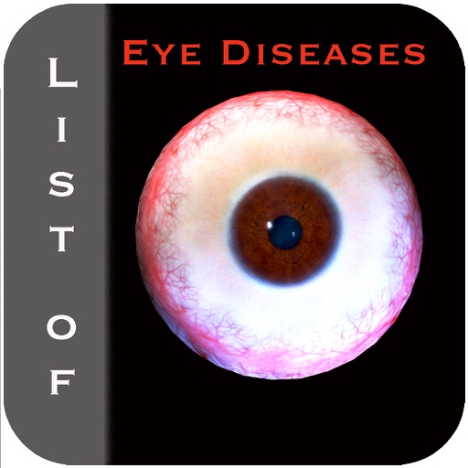 List of Eye Diseases