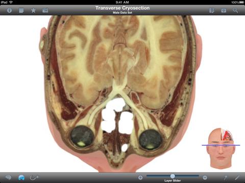 Pocket Brain-インタラクティブ神経解剖学のおすすめ画像3