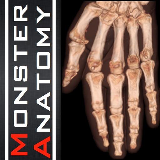 Monster Anatomy - Upper Limb