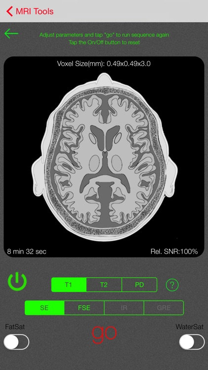 iRad MRI screenshot-3