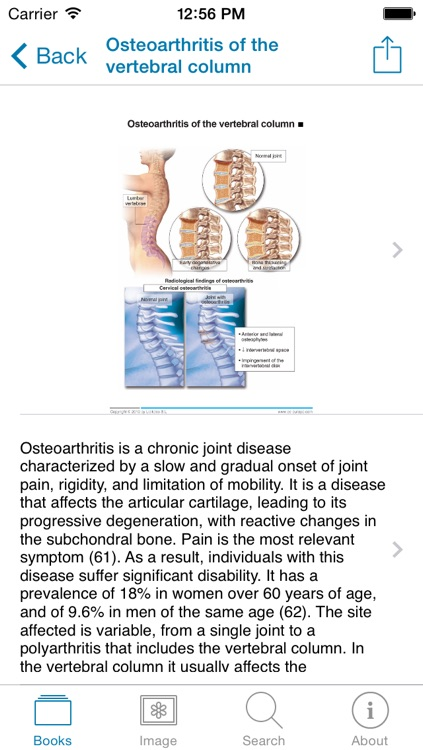Miniatlas Diseases of the vertebral column screenshot-3