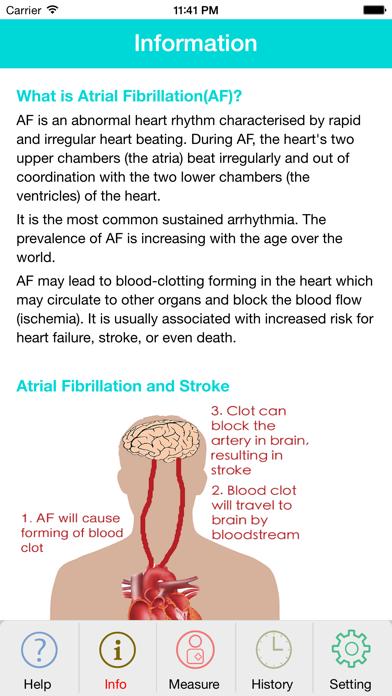 Photo AFib Detectorのおすすめ画像3