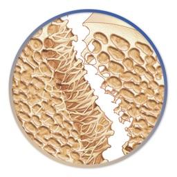 Miniatlas Osteoporosis