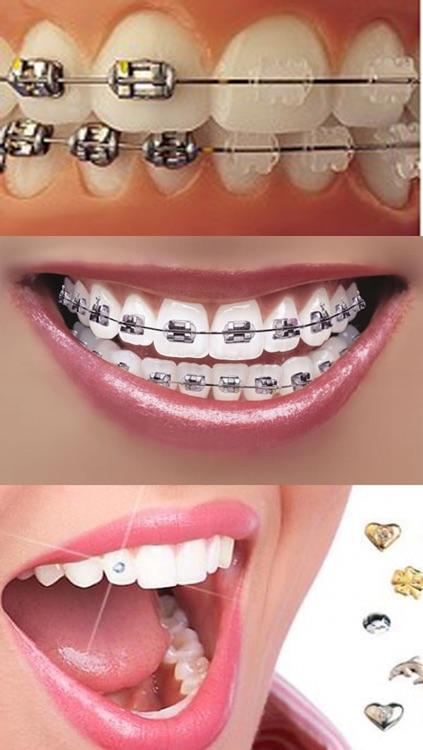 Orthodontic تقويم الاسنان