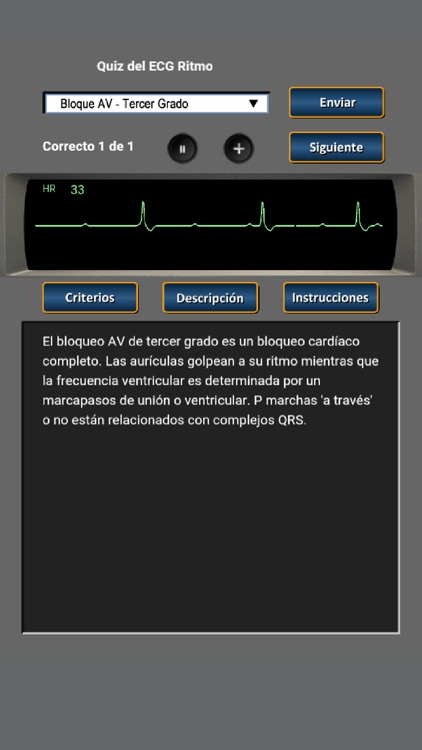 Quiz del ECG Ritmo screenshot-3
