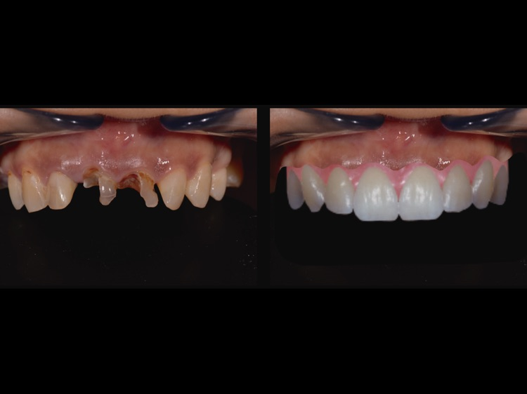 DentsioSim screenshot-0