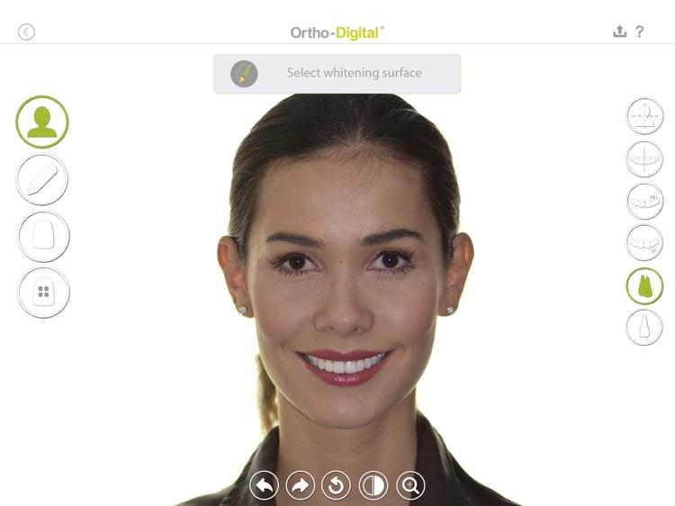 Ortho-Digital