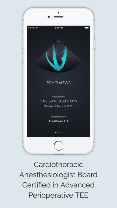 Echo Views review screenshots