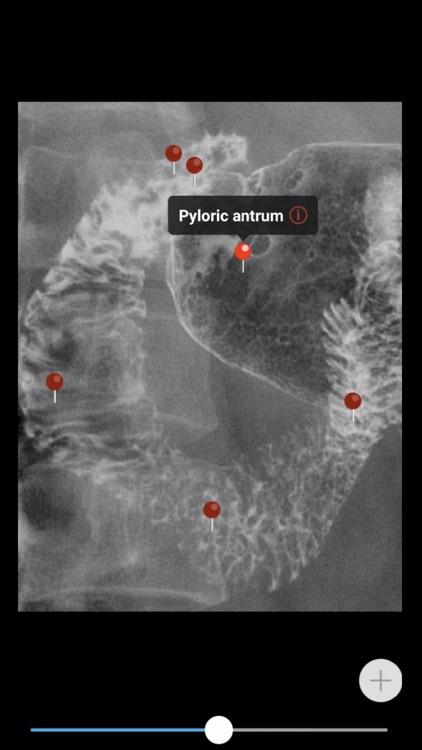 MedImaging-Radiology Made Easy screenshot-6